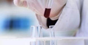 Trop de dépistage du cancer de la prostate ?