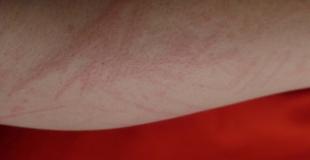 Allergies cutanées : quels allergènes ? Précautions et traitements