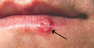 Le bouton de fièvre : qu'est-ce que c'est, comment le soigner ?