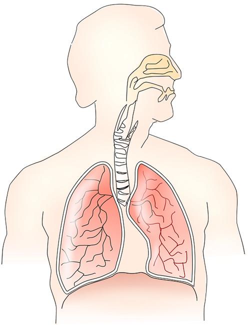 bronchite asthmatiforme