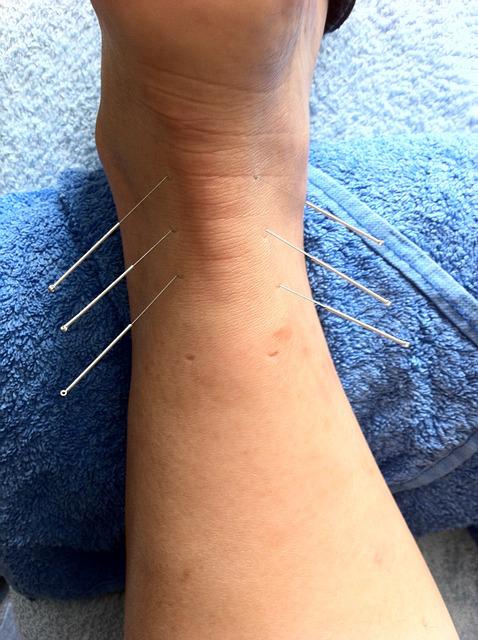 acupuncture pour signer un lumbago