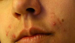Boutons d'acné